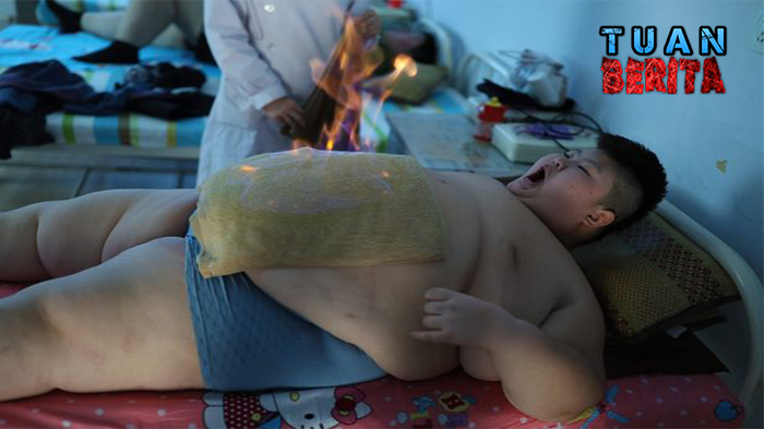 pay-china-obesity-problem-rising-in-children